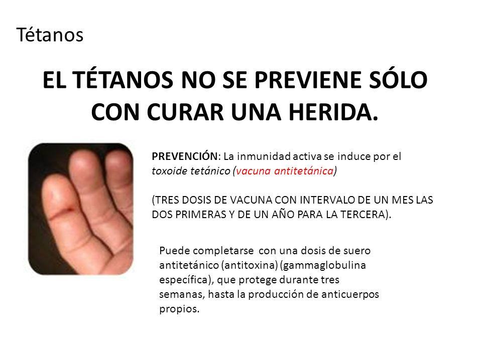 EL TÉTANOS NO SE PREVIENE SÓLO CON CURAR UNA HERIDA.