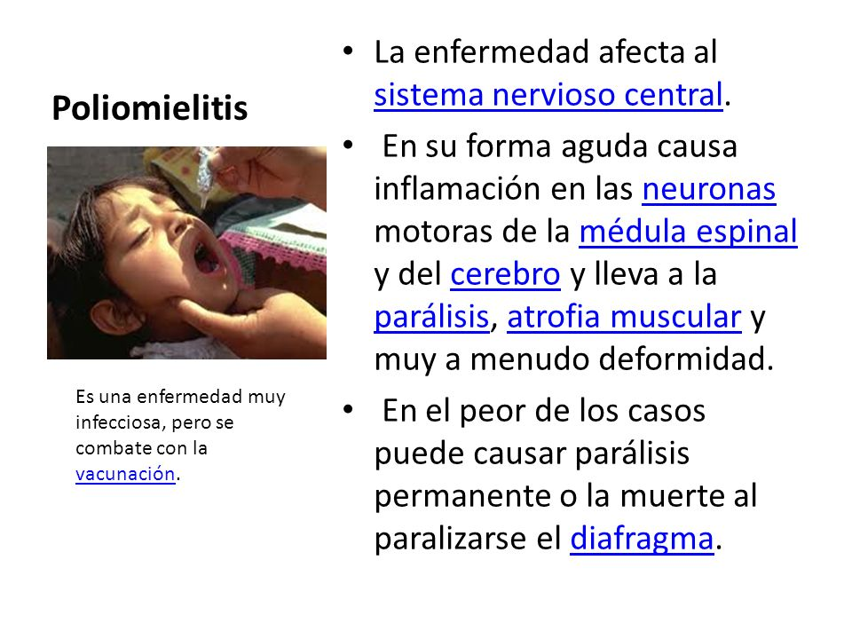 Poliomielitis La enfermedad afecta al sistema nervioso central.