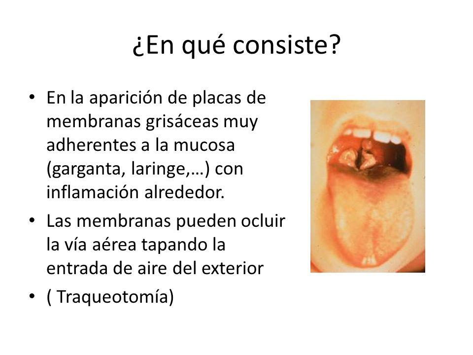 ¿En qué consiste En la aparición de placas de membranas grisáceas muy adherentes a la mucosa (garganta, laringe,…) con inflamación alrededor.