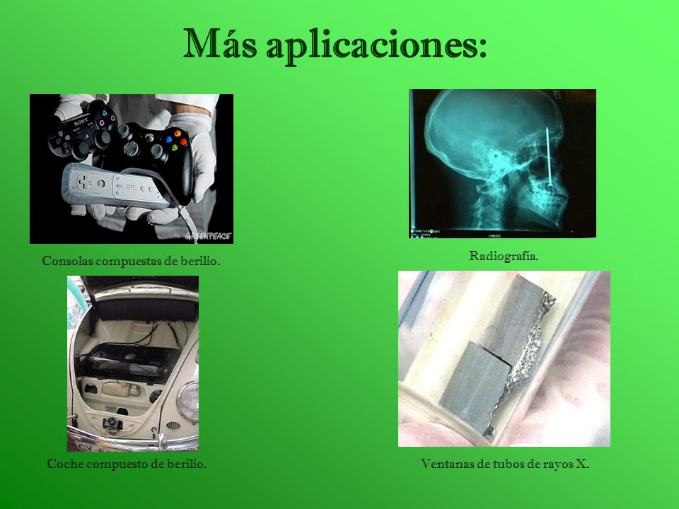 Más aplicaciones: Radiografía. Consolas compuestas de berilio.