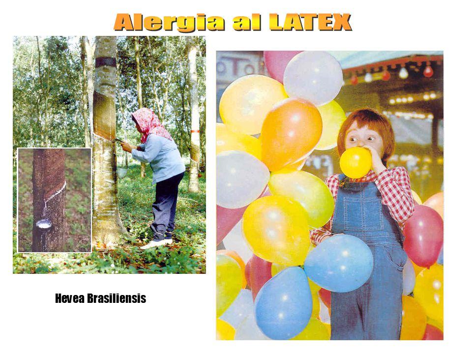 Alergia al LATEX Hevea Brasiliensis