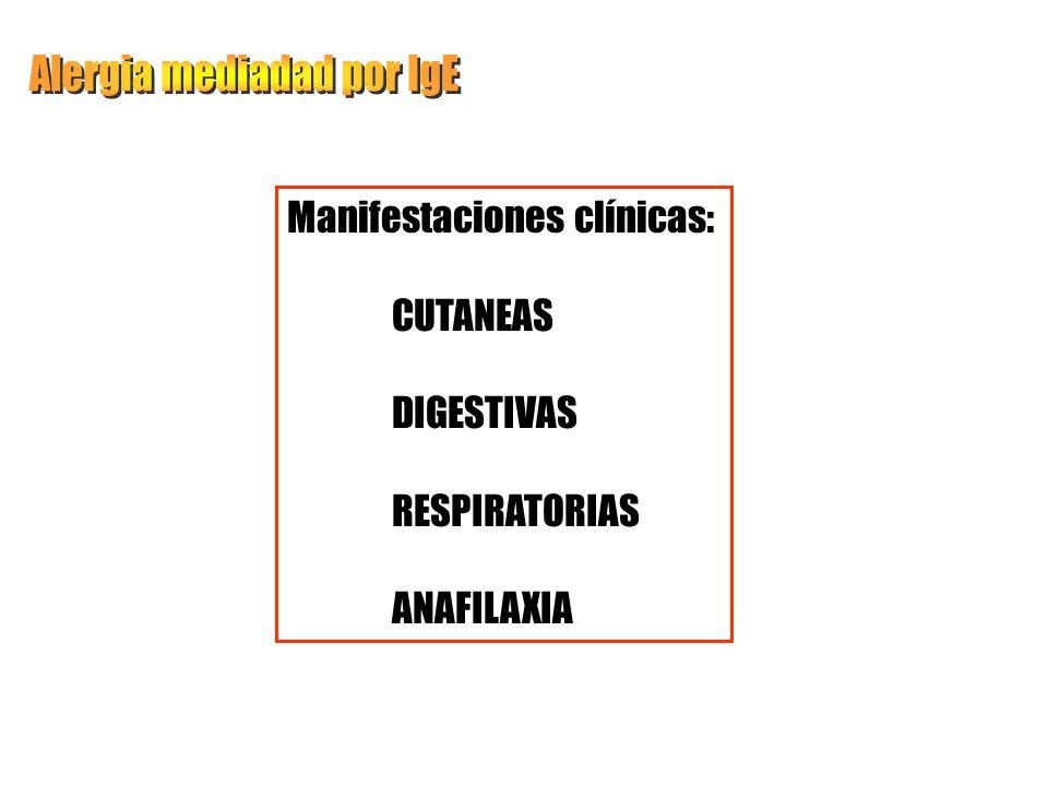 Alergia mediadad por IgE
