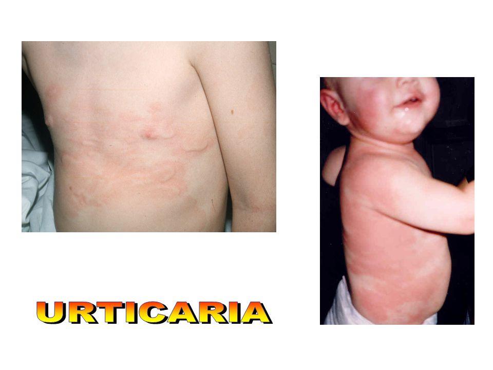 La expresión clínica más frecuente de una alergia alimentaria es la urticaria y el angioedema