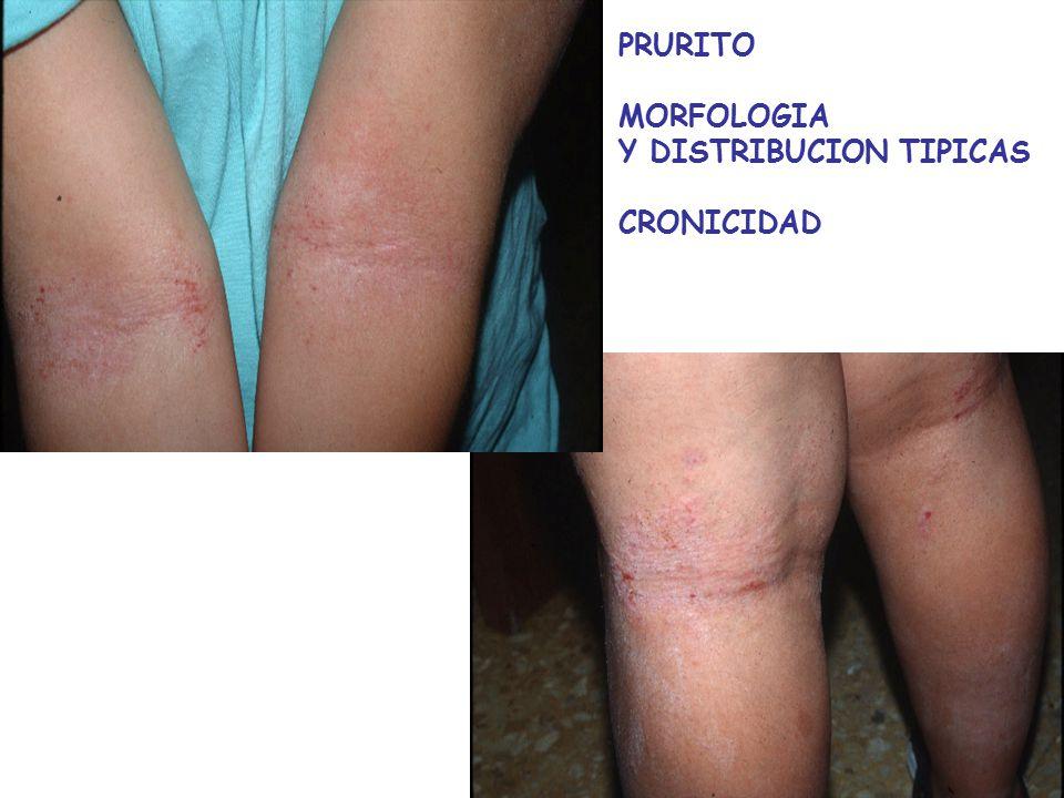 PRURITO MORFOLOGIA Y DISTRIBUCION TIPICAS CRONICIDAD