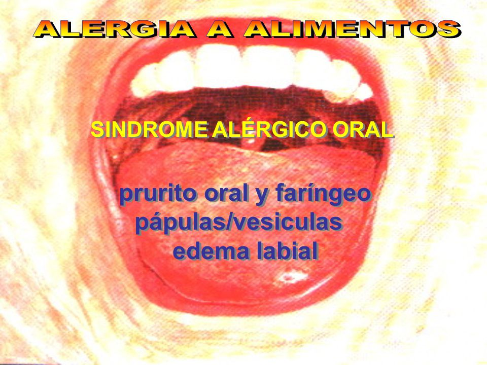 prurito oral y faríngeo