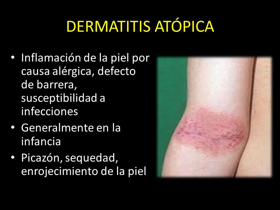 DERMATITIS ATÓPICA Inflamación de la piel por causa alérgica, defecto de barrera, susceptibilidad a infecciones.