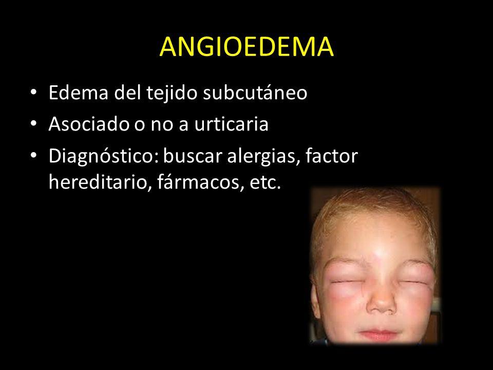 ANGIOEDEMA Edema del tejido subcutáneo Asociado o no a urticaria