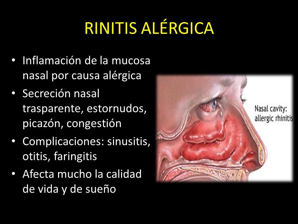 RINITIS ALÉRGICA Inflamación de la mucosa nasal por causa alérgica