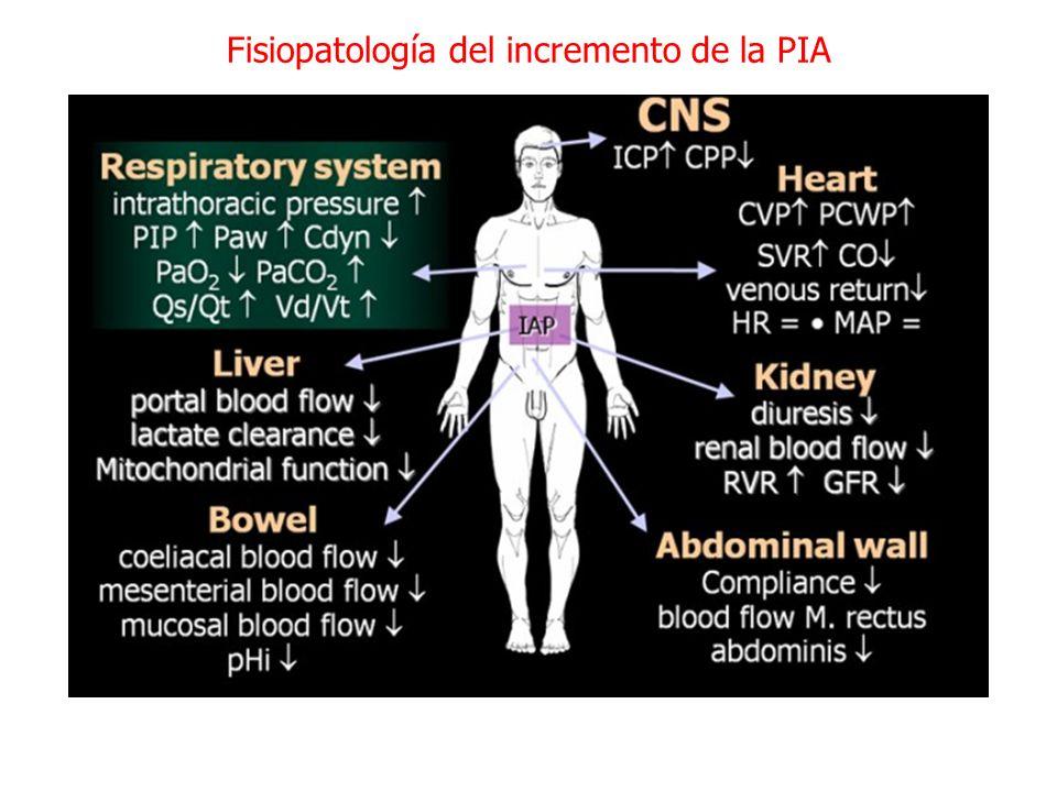 Fisiopatología del incremento de la PIA