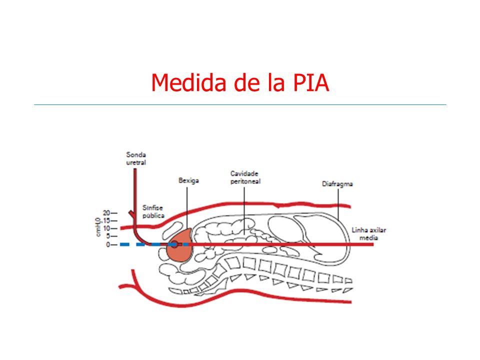 Medida de la PIA