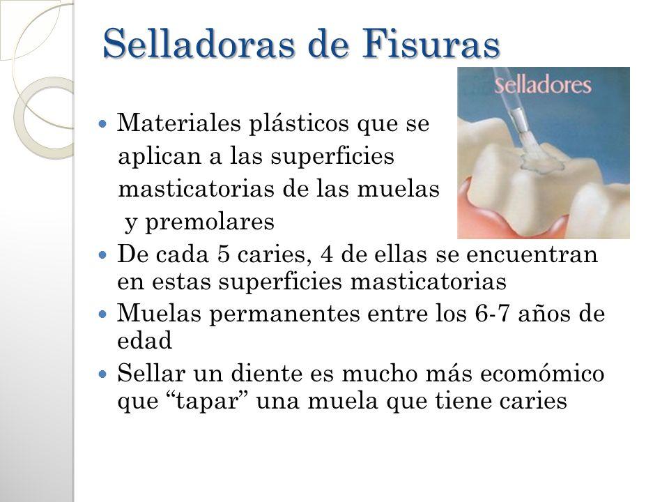 Selladoras de Fisuras Materiales plásticos que se