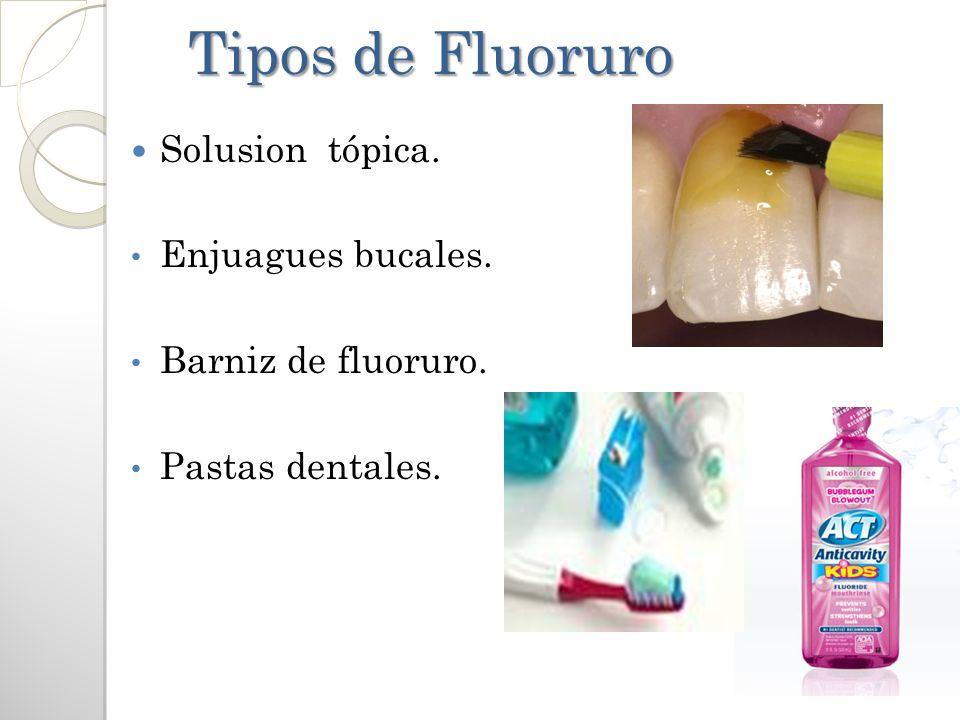 Tipos de Fluoruro Solusion tópica. Enjuagues bucales.