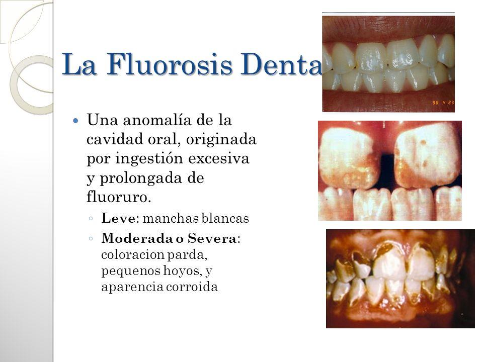 La Fluorosis Dental Una anomalía de la cavidad oral, originada por ingestión excesiva y prolongada de fluoruro.