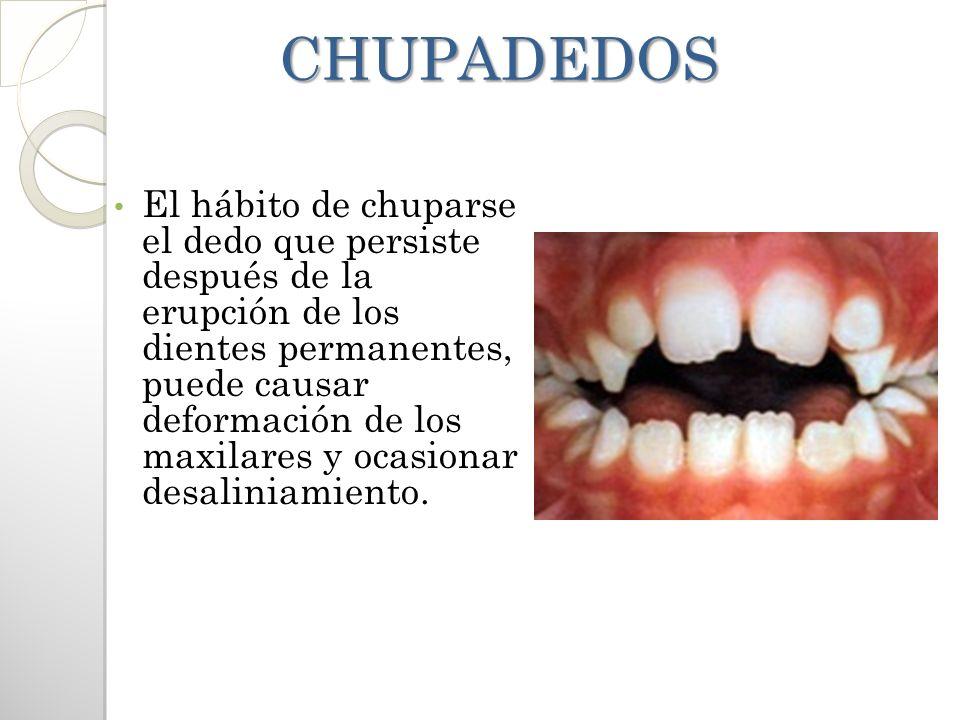 CHUPADEDOS