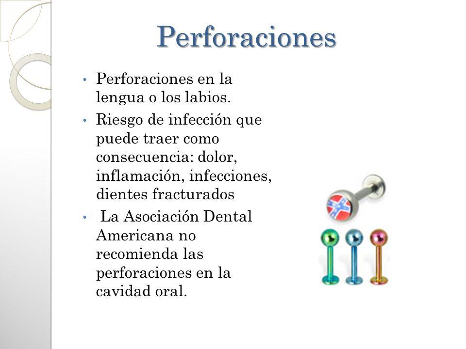 Perforaciones Perforaciones en la lengua o los labios.