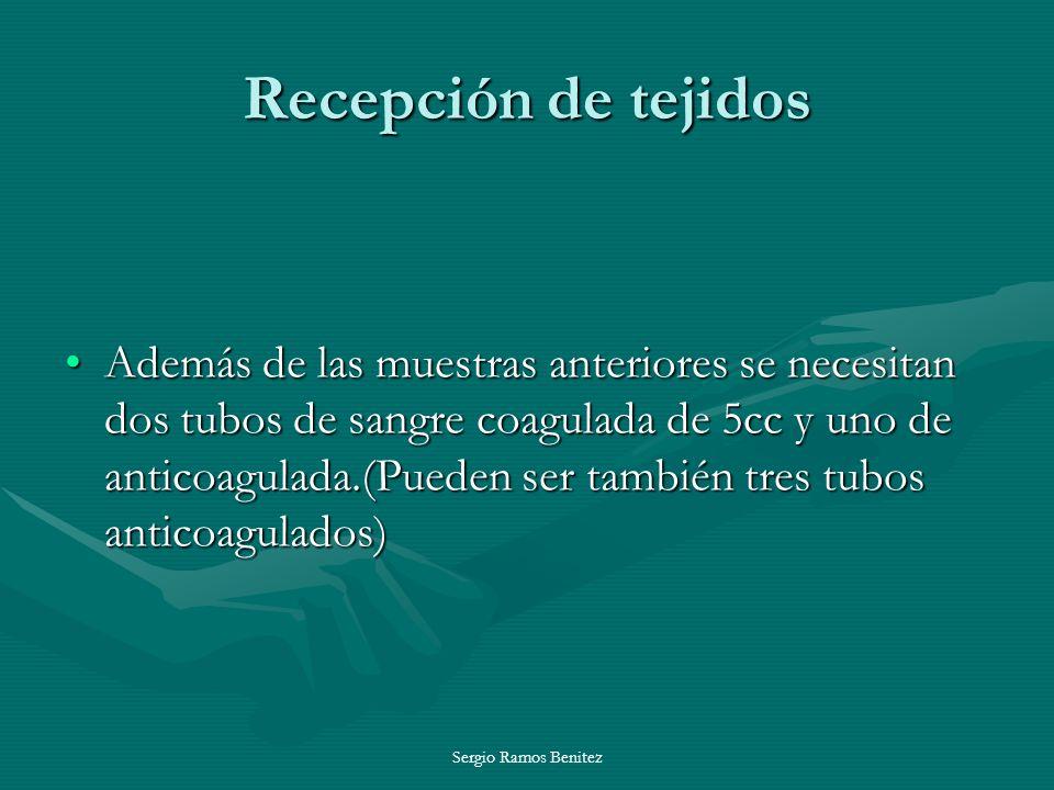 Recepción de tejidos