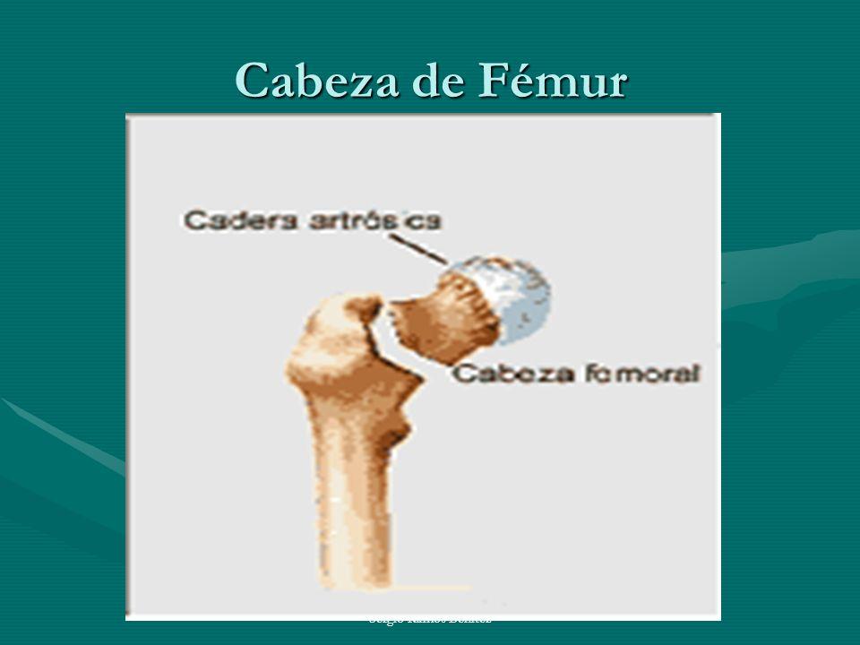 Cabeza de Fémur Sergio Ramos Benitez