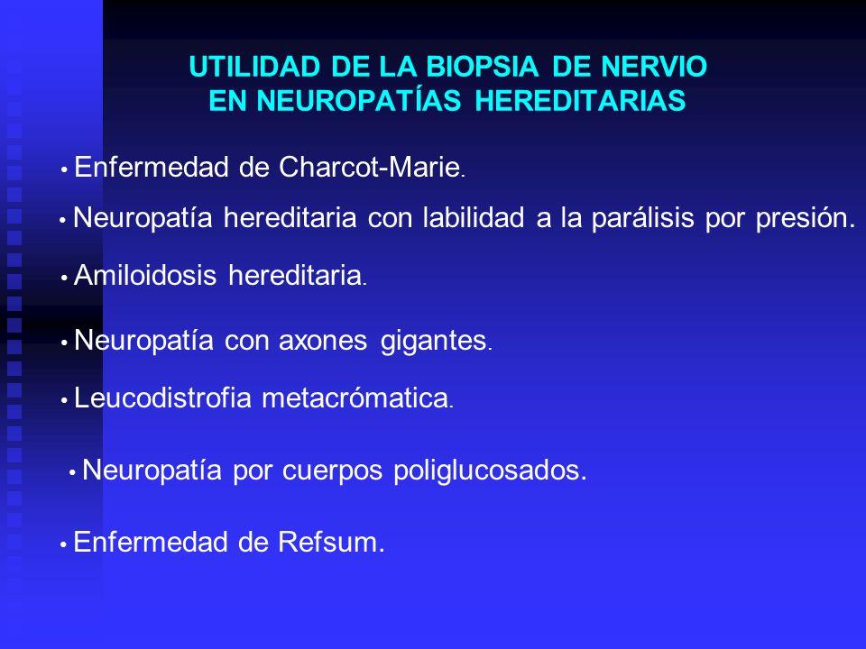 UTILIDAD DE LA BIOPSIA DE NERVIO EN NEUROPATÍAS HEREDITARIAS