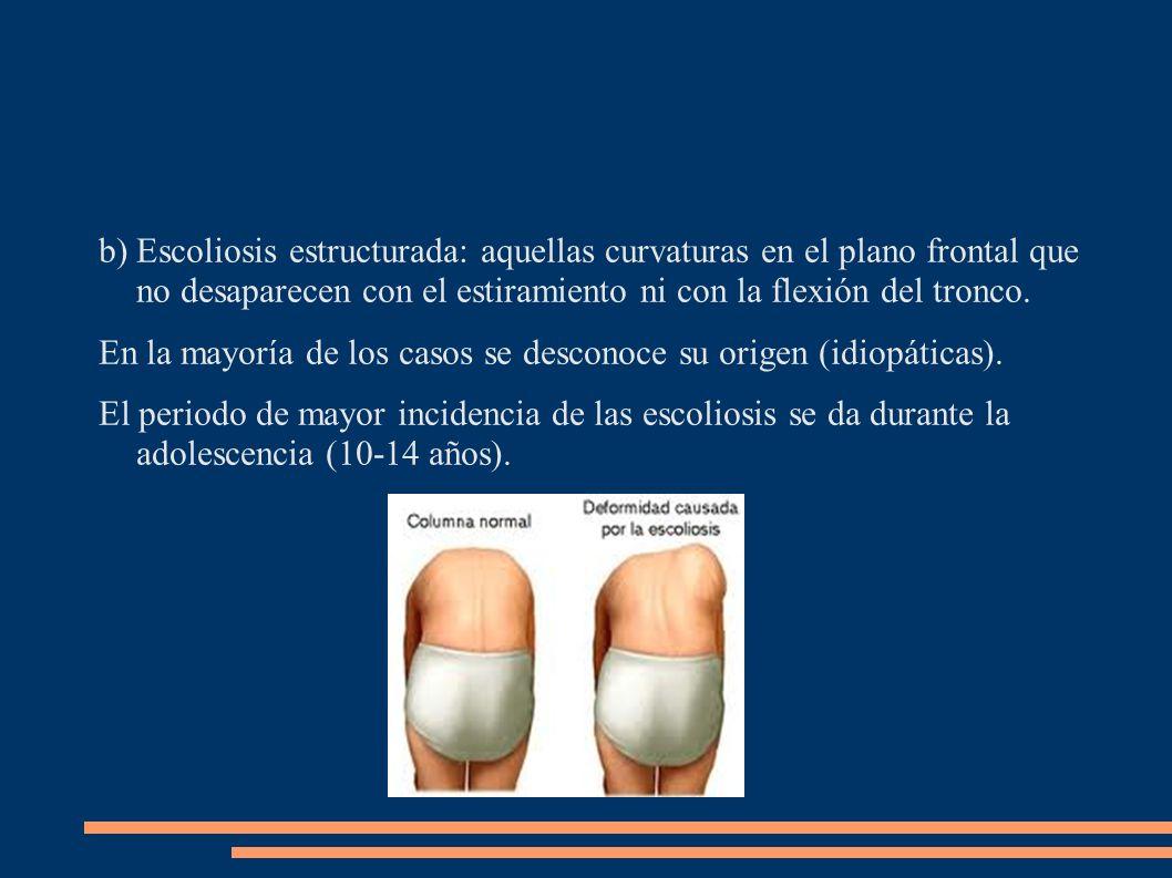 Escoliosis estructurada: aquellas curvaturas en el plano frontal que no desaparecen con el estiramiento ni con la flexión del tronco.