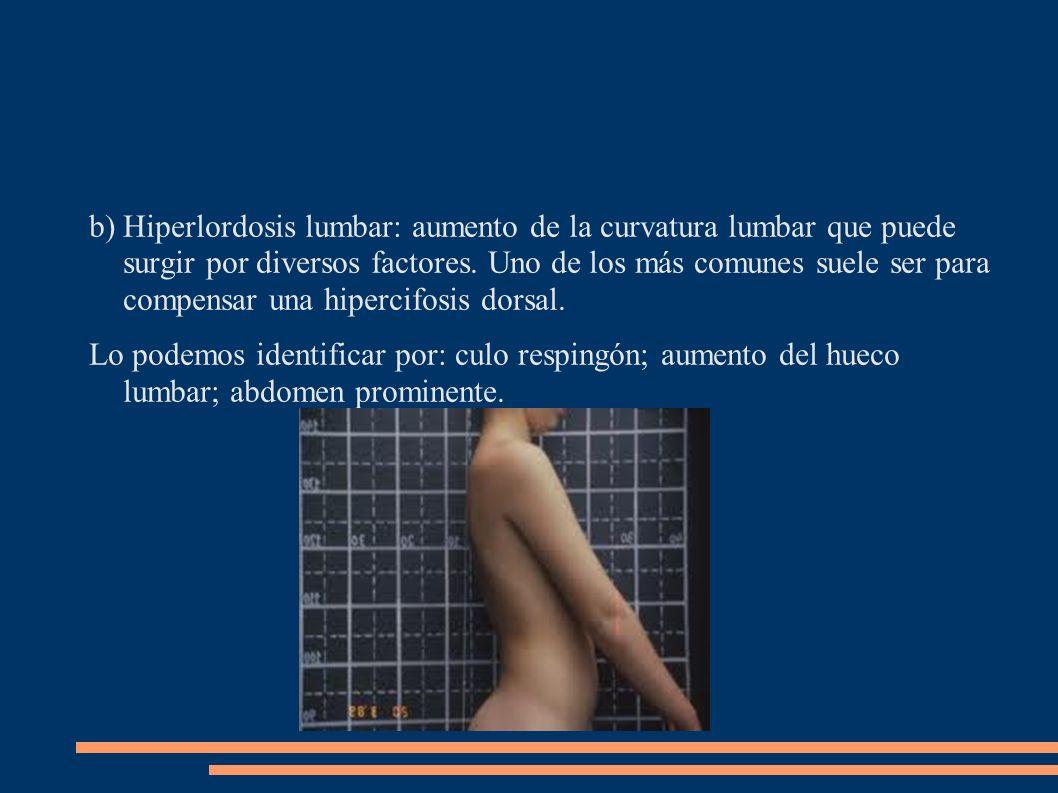 Hiperlordosis lumbar: aumento de la curvatura lumbar que puede surgir por diversos factores. Uno de los más comunes suele ser para compensar una hipercifosis dorsal.