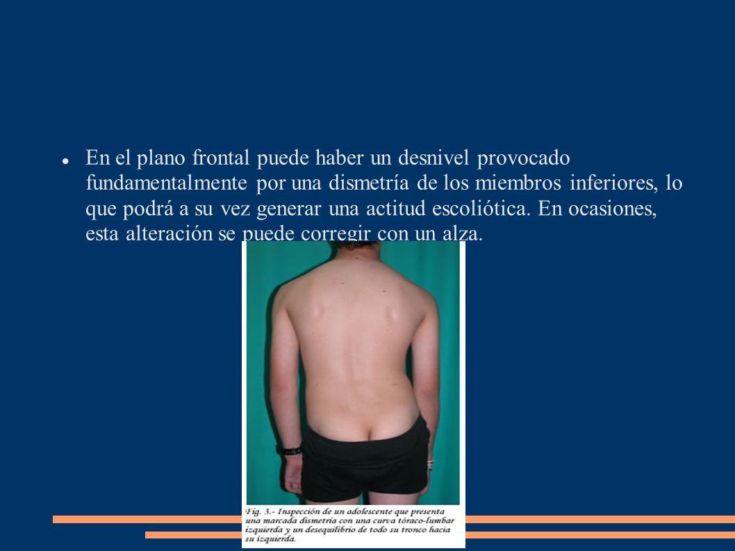 En el plano frontal puede haber un desnivel provocado fundamentalmente por una dismetría de los miembros inferiores, lo que podrá a su vez generar una actitud escoliótica.
