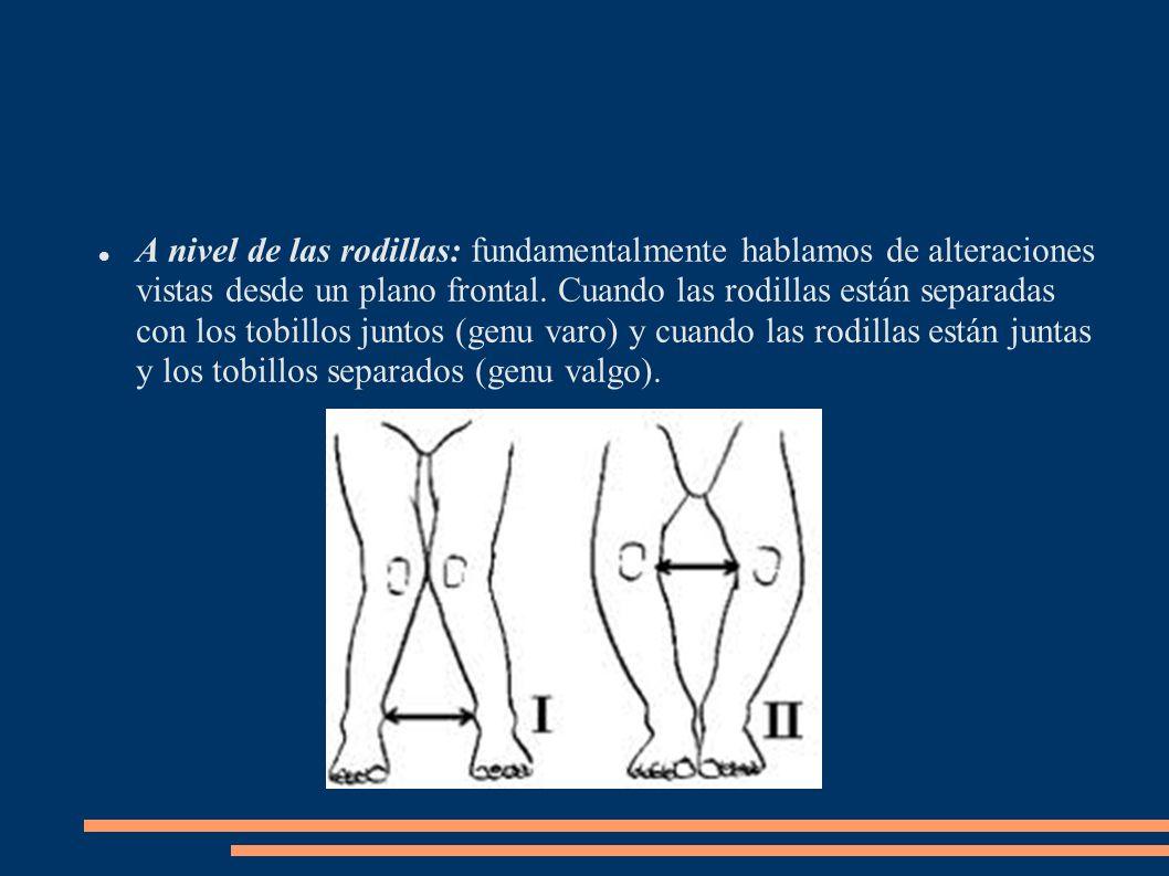 A nivel de las rodillas: fundamentalmente hablamos de alteraciones vistas desde un plano frontal.