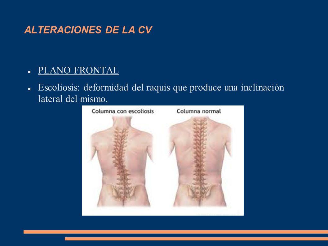 ALTERACIONES DE LA CV PLANO FRONTAL.