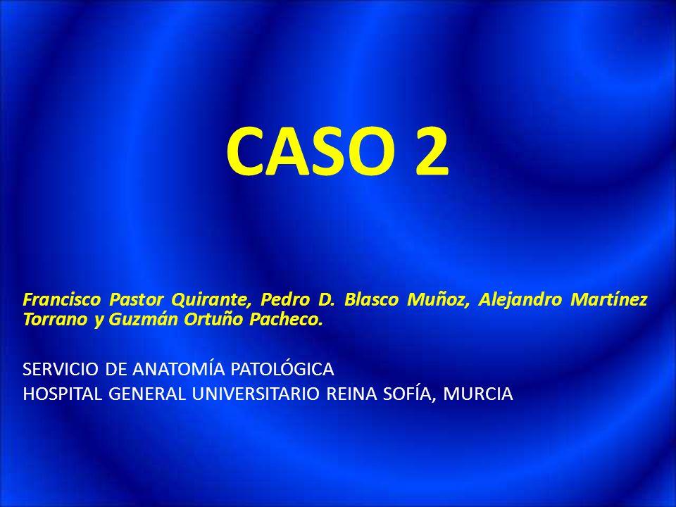 CASO 2Francisco Pastor Quirante, Pedro D. Blasco Muñoz, Alejandro Martínez Torrano y Guzmán Ortuño Pacheco.