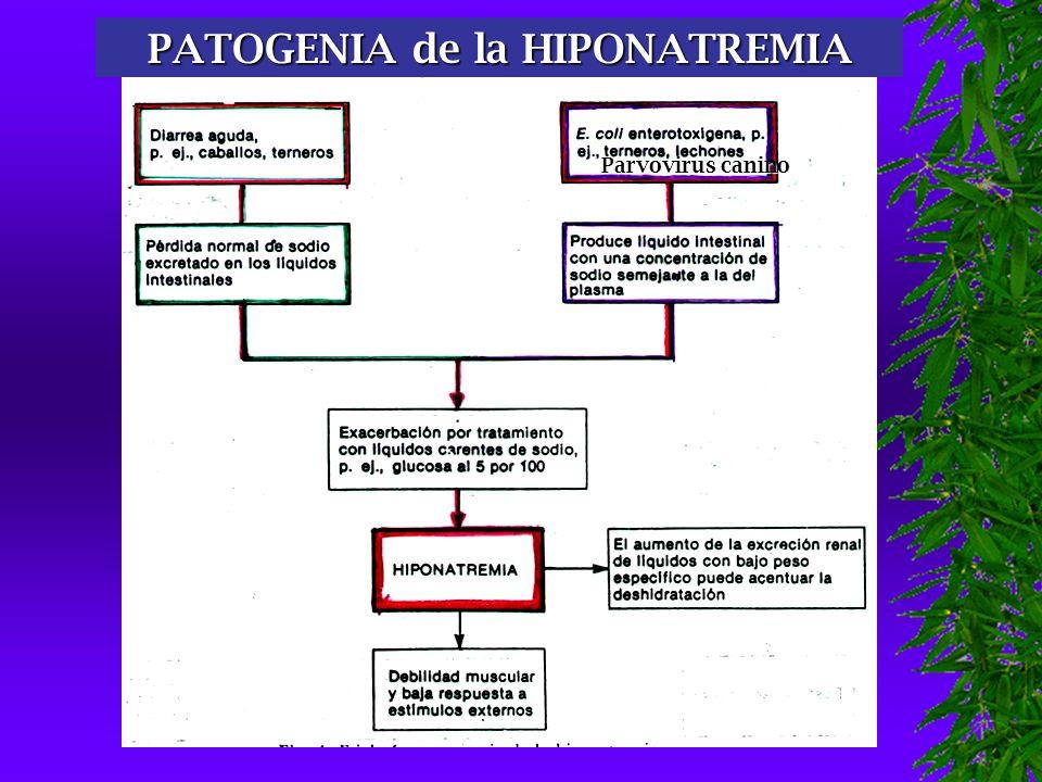 PATOGENIA de la HIPONATREMIA