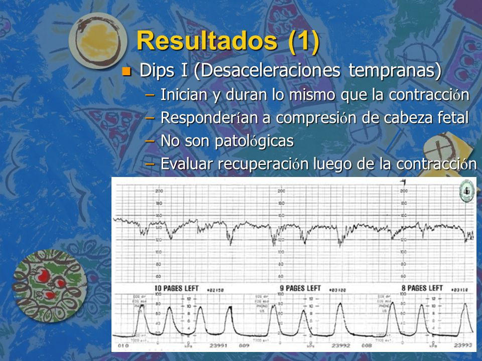 Resultados (1) Dips I (Desaceleraciones tempranas)