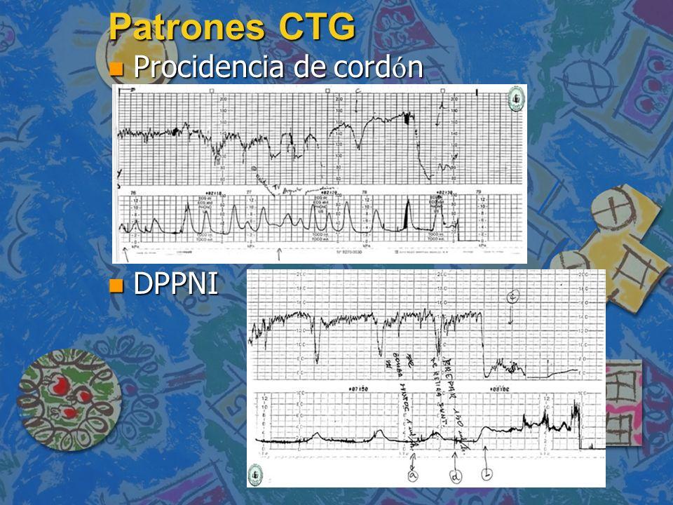 Patrones CTG Procidencia de cordón DPPNI