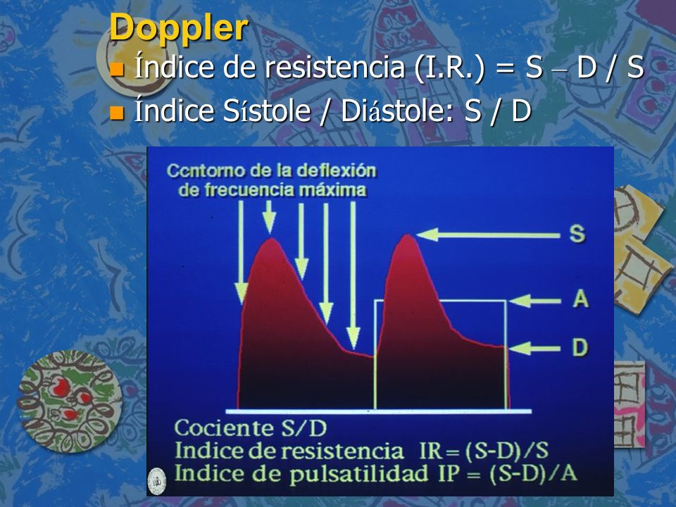 Doppler Índice de resistencia (I.R.) = S – D / S