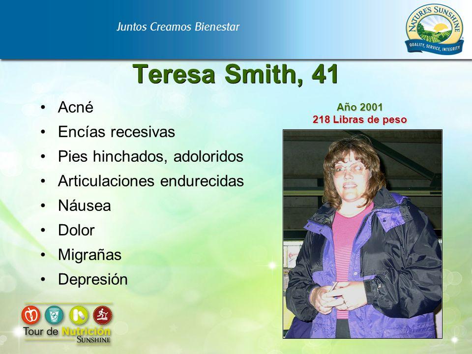Teresa Smith, 41 Acné Encías recesivas Pies hinchados, adoloridos