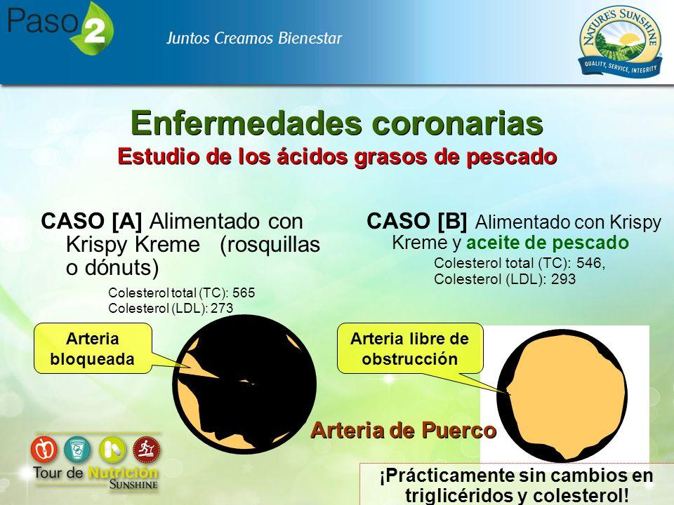 Enfermedades coronarias Estudio de los ácidos grasos de pescado