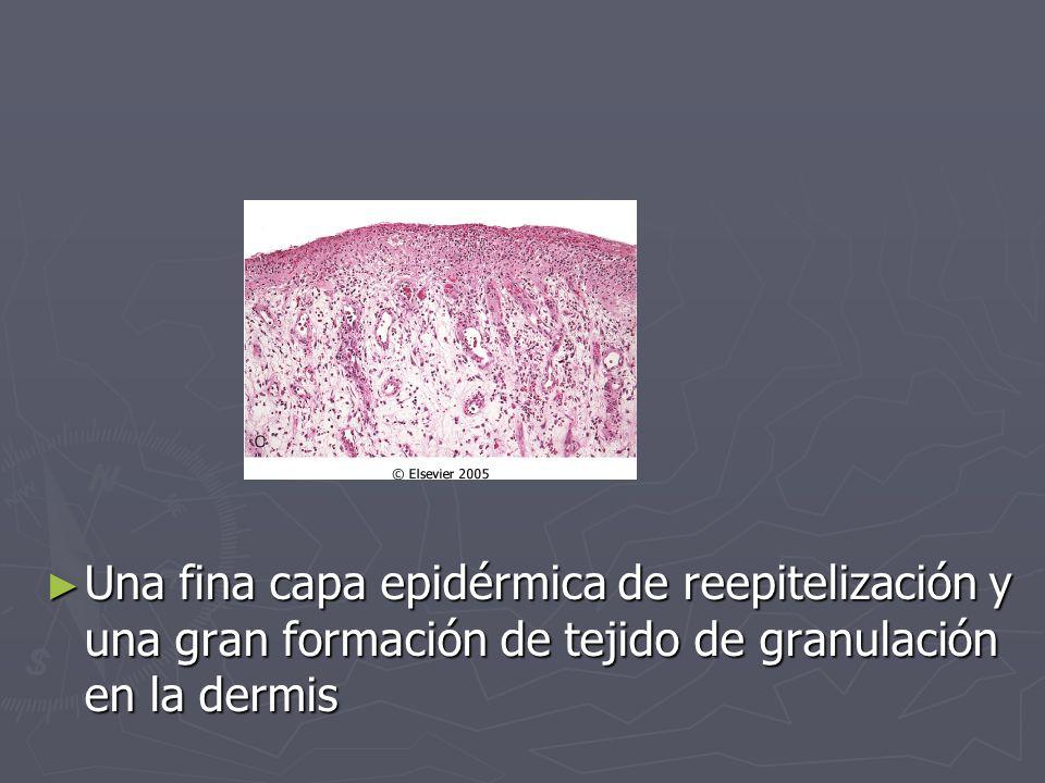 Una fina capa epidérmica de reepitelización y una gran formación de tejido de granulación en la dermis