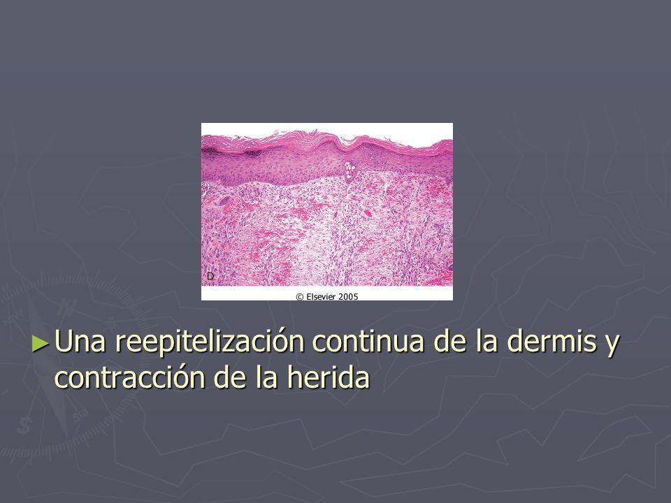 Una reepitelización continua de la dermis y contracción de la herida