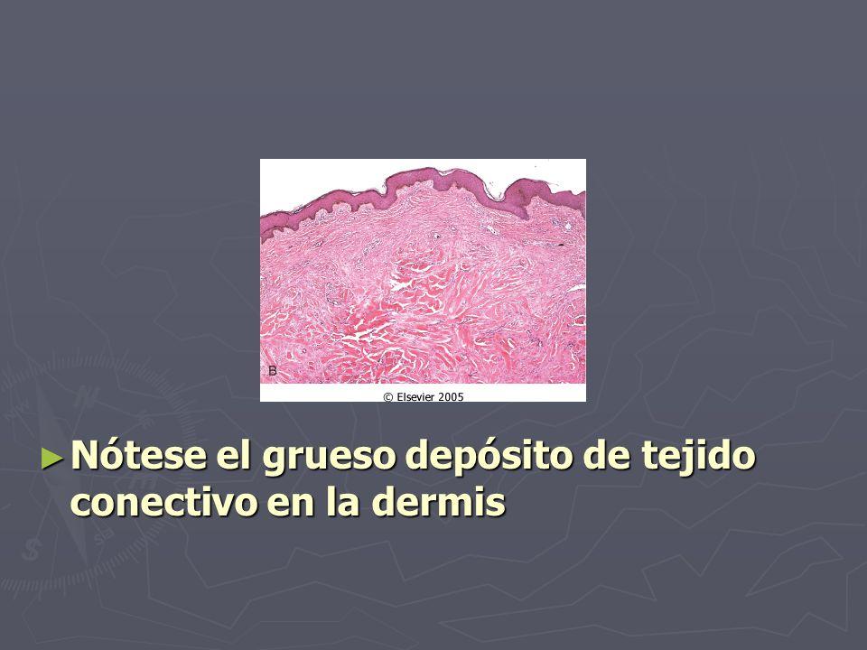 Nótese el grueso depósito de tejido conectivo en la dermis