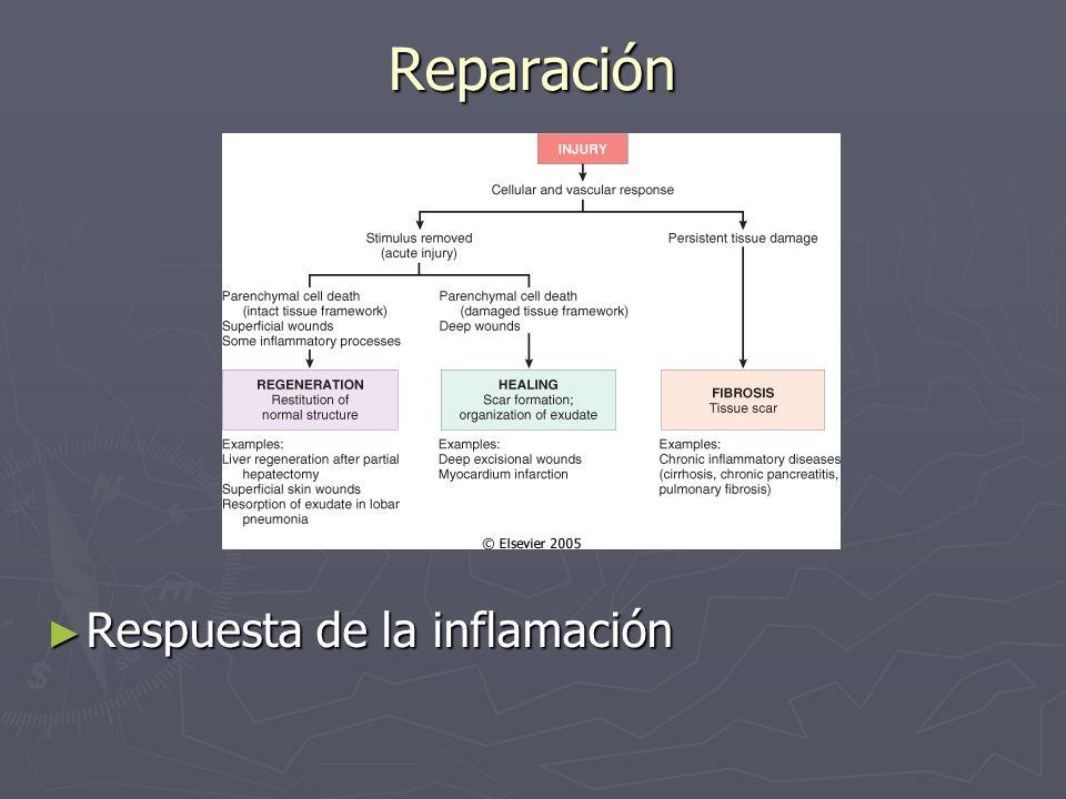 Reparación Respuesta de la inflamación