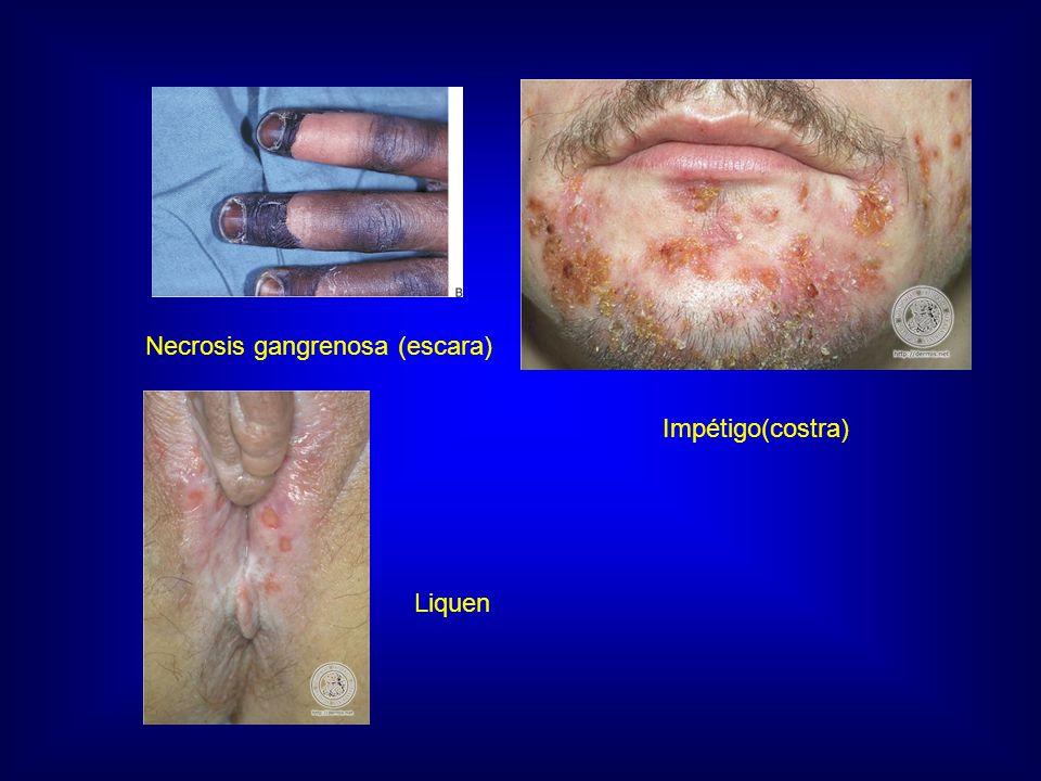 Necrosis gangrenosa (escara)