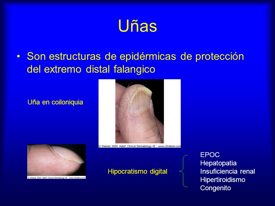Uñas Son estructuras de epidérmicas de protección del extremo distal falangico. Uña en coiloniquia.