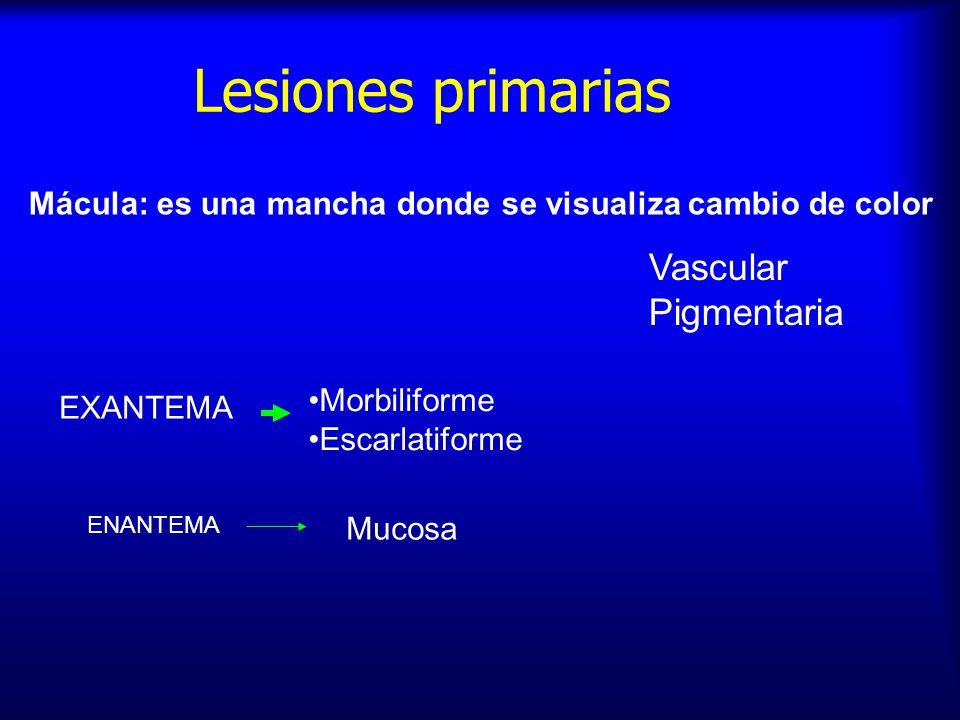 Lesiones primarias Vascular Pigmentaria