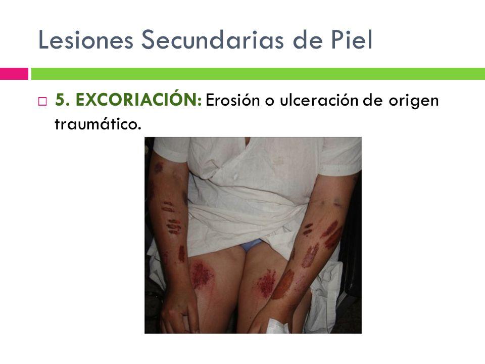 Lesiones Secundarias de Piel