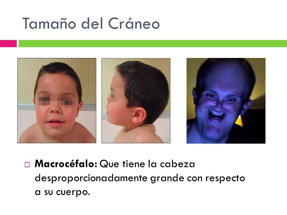 Tamaño del Cráneo Macrocéfalo: Que tiene la cabeza desproporcionadamente grande con respecto a su cuerpo.