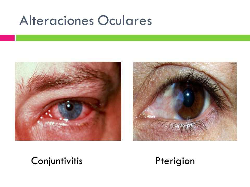 Alteraciones Oculares