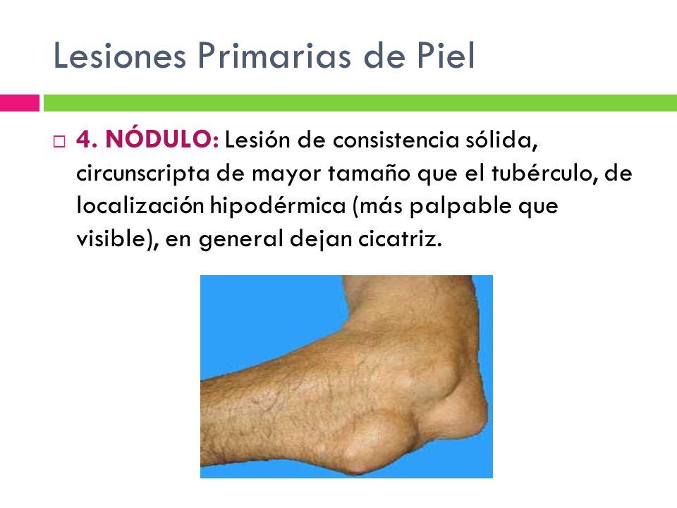 Lesiones Primarias de Piel