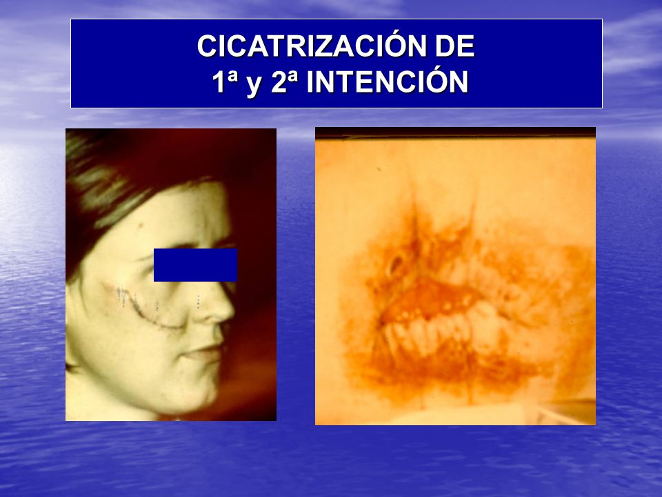 CICATRIZACIÓN DE 1ª y 2ª INTENCIÓN