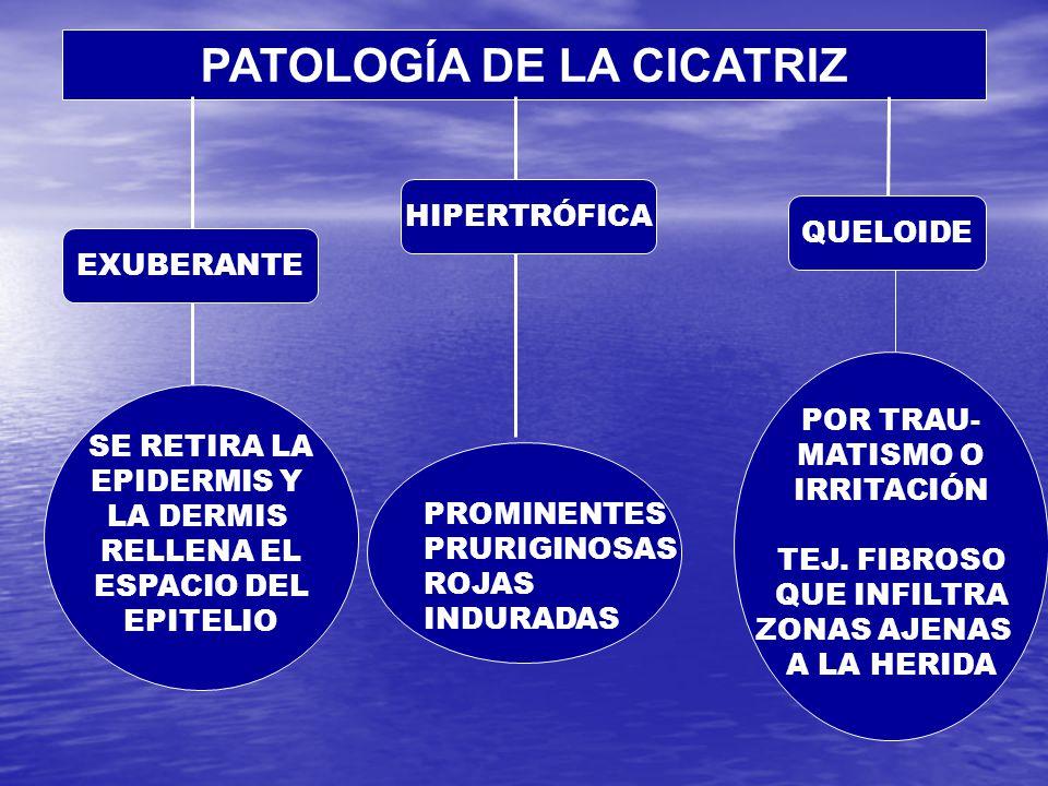 PATOLOGÍA DE LA CICATRIZ