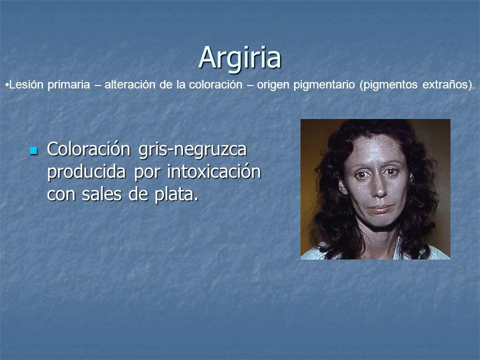 Argiria Lesión primaria – alteración de la coloración – origen pigmentario (pigmentos extraños).