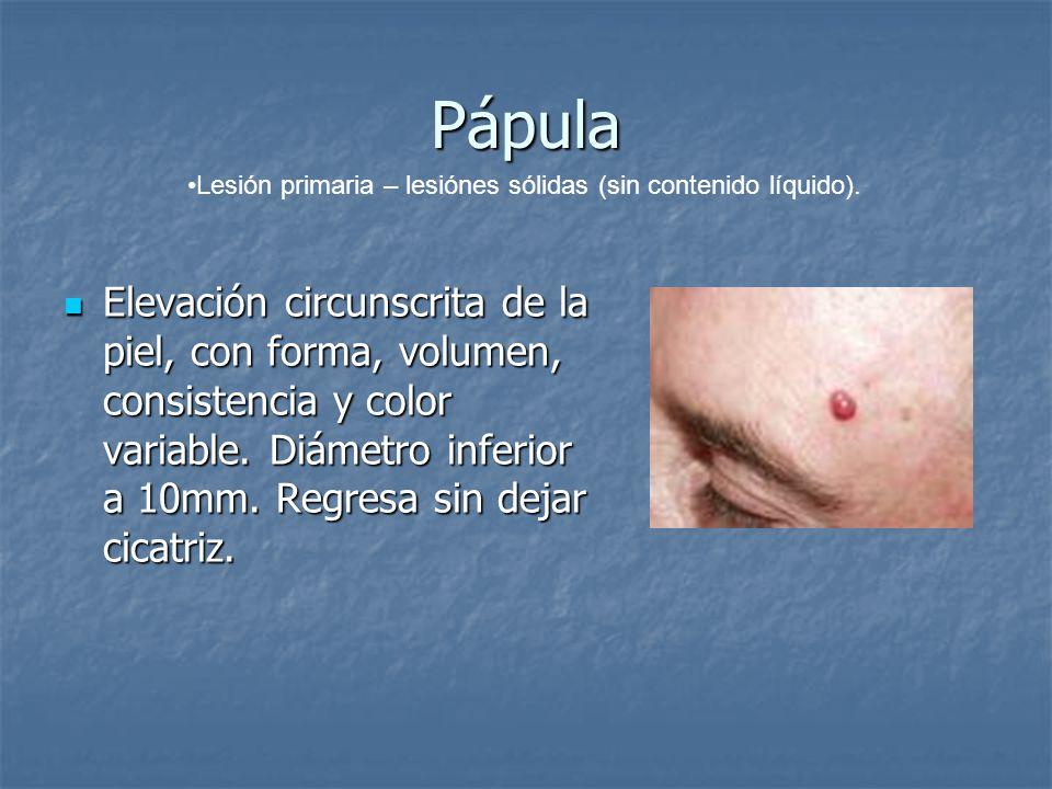 Pápula Lesión primaria – lesiónes sólidas (sin contenido líquido).