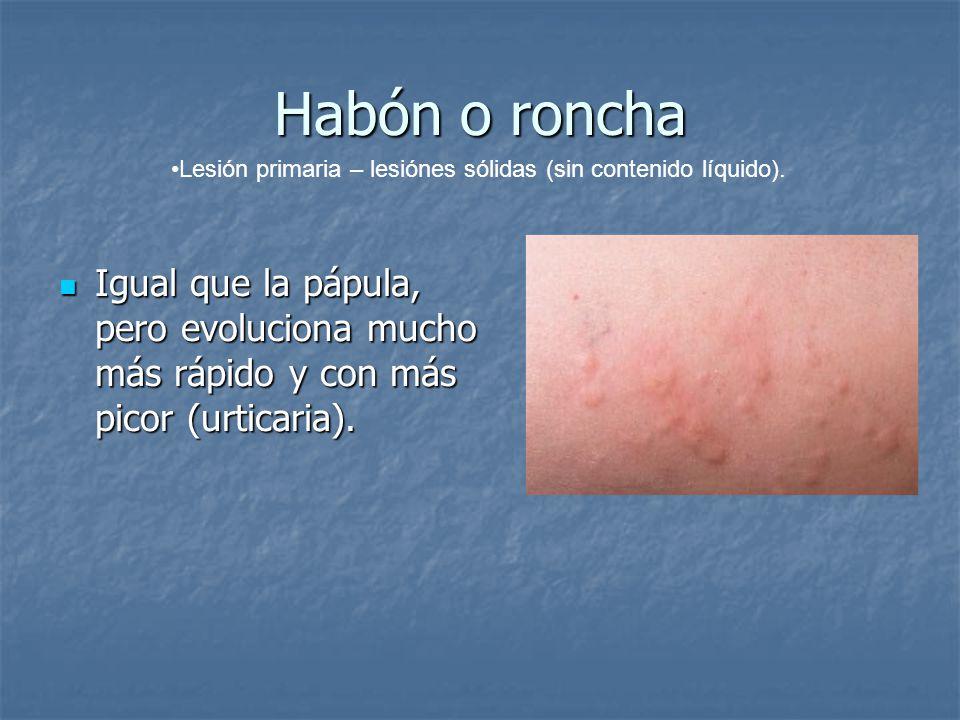 Habón o roncha Lesión primaria – lesiónes sólidas (sin contenido líquido).